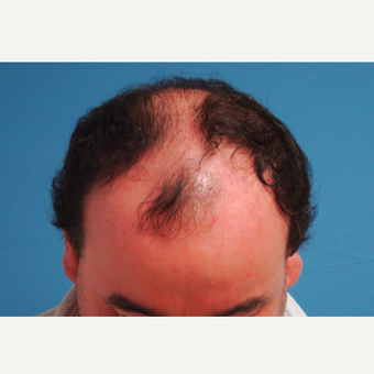 45-54 year old man treated with Hair Transplant before 3337450