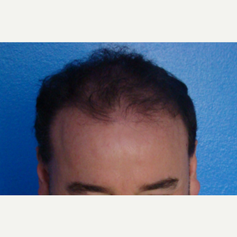 45-54 year old man treated with Hair Transplant after 3337450