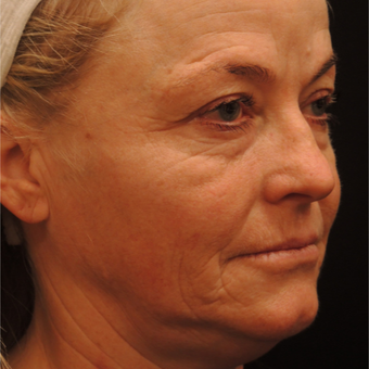 45-54 year old woman treated with Ultherapy before 3466766