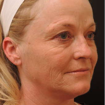 45-54 year old woman treated with Ultherapy after 3466766