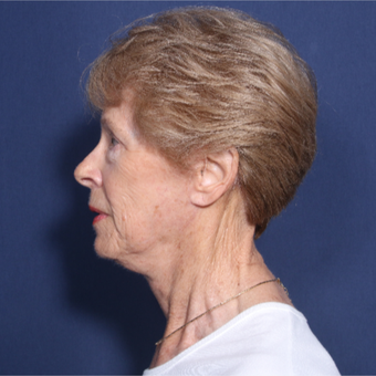 65-74 year old woman treated with Neck Lift (view 2 of 2) after 3179888