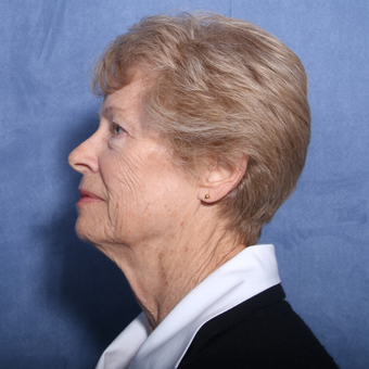 65-74 year old woman treated with Neck Lift (view 2 of 2) before 3179888