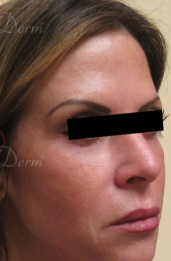 45-54 year old woman treated with Liquid Facelift