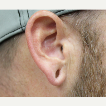 Ear Lobe Surgery before 3417772