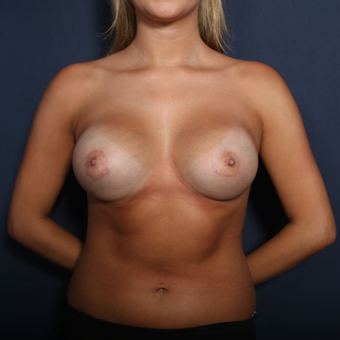 18-24 year old woman treated with Breast Augmentation (view 1 of 2) after 2976097
