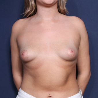 18-24 year old woman treated with Breast Augmentation (view 1 of 2) before 2976097