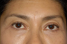 Blepharoplasty-Mid-Face after 282774