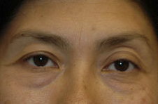 Blepharoplasty-Mid-Face before 282774