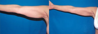 61-year-old woman treated with Liposuction. before 3287606