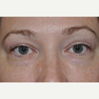 Eyelid Retraction Repair before 2284183