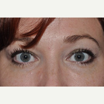 Eyelid Retraction Repair after 2284183