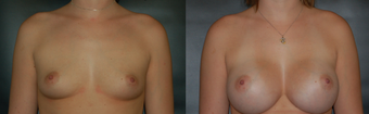 Breast Augmentation before 529907