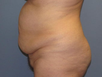 Tummy Tuck on 57-year-old before 842070