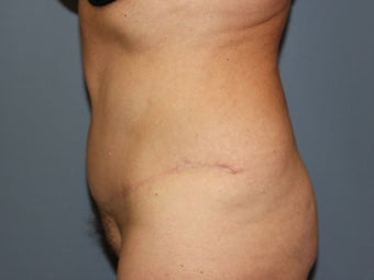Tummy Tuck on 57-year-old after 842070