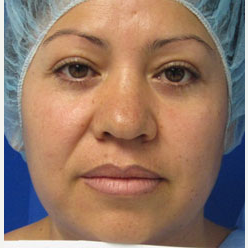 Eyelid Surgery after 3168638
