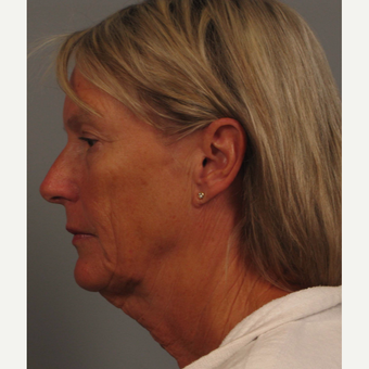 55-64 year old woman treated with Facelift before 3505910