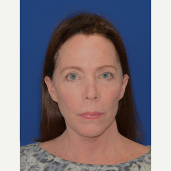 65-74 year old woman treated with Facelift after 3621586