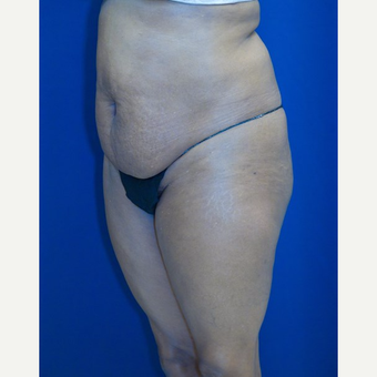 55-64 year old woman treated with Tummy Tuck before 3109940