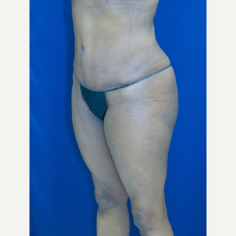 55-64 year old woman treated with Tummy Tuck after 3109940