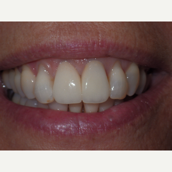 Results from two all porcelain crowns after 3327183