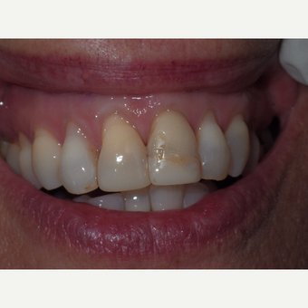 Results from two all porcelain crowns before 3327183