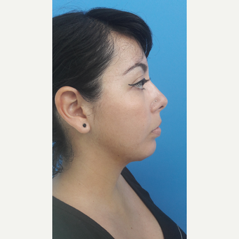 25-34 year old woman treated with Chin Implant after 3009310