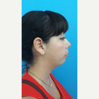 25-34 year old woman treated with Chin Implant before 3009310