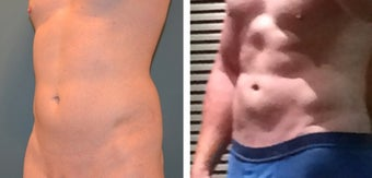 25-34 year old man treated for Smart Lipo before 1479505