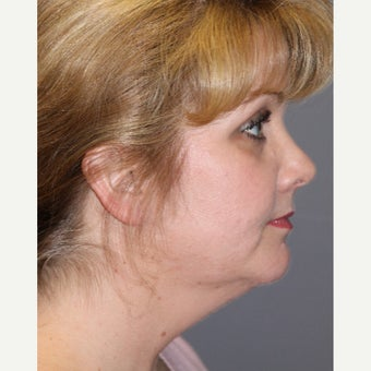45-54 year old woman treated with Chin Liposuction