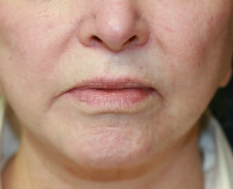 "Corner of Lip Lift for ""Sad"" Expression before 998801"