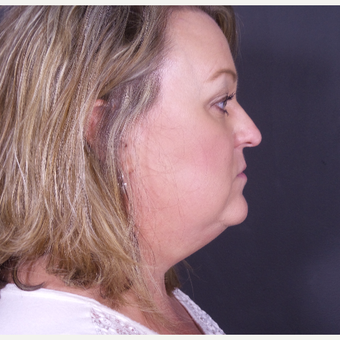 35-44 year old woman treated with Chin Liposuction before 3468191
