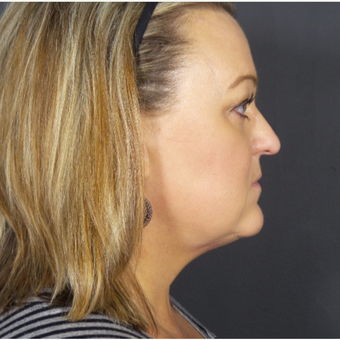 35-44 year old woman treated with Chin Liposuction after 3468191