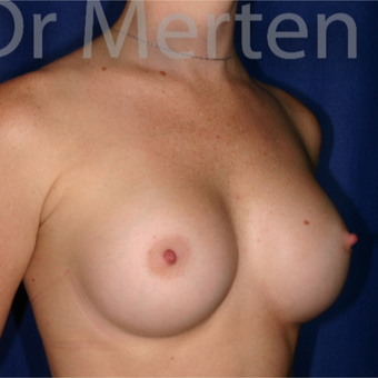 18-24 year old woman treated with Breast Augmentation after 3551220