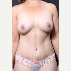 45-54 year old woman treated with Breast Fat Transfer after 2837224