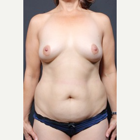 45-54 year old woman treated with Breast Fat Transfer before 2837224