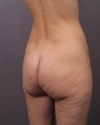 45-54 year old woman treated with Butt Lift