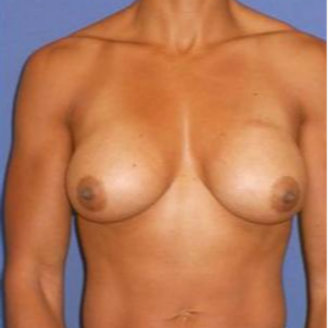 Subglandular Breast Augmentation after 3650742