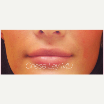 25-34 year old woman treated with Lip Augmentation after 3305111