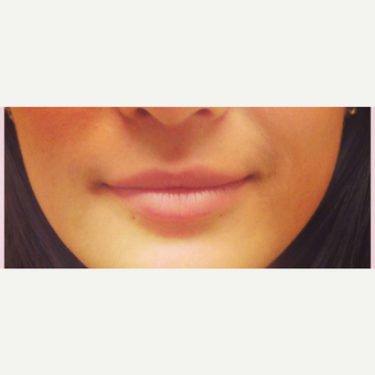 25-34 year old woman treated with Lip Augmentation before 3305111