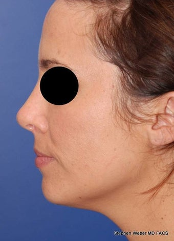 25-34 year old woman treated with Rhinoplasty after 3624186