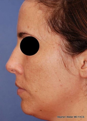 25-34 year old woman treated with Rhinoplasty before 3624186