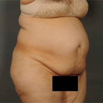 55-64 year old woman treated with Tummy Tuck before 3423674