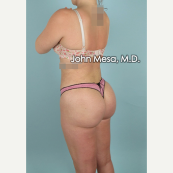 25-34 year old woman treated with Brazilian Butt Lift after 3777621