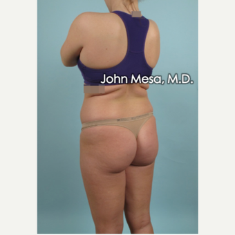 25-34 year old woman treated with Brazilian Butt Lift before 3777621