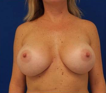 Breast Augmentation after 1275993