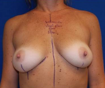 Breast Augmentation before 1275993