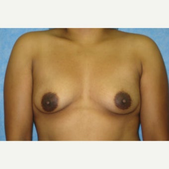 500 cc Saline Breast Implants before 2451761
