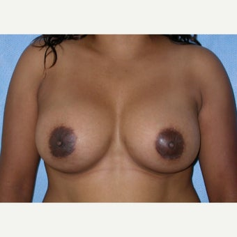 500 cc Saline Breast Implants after 2451761