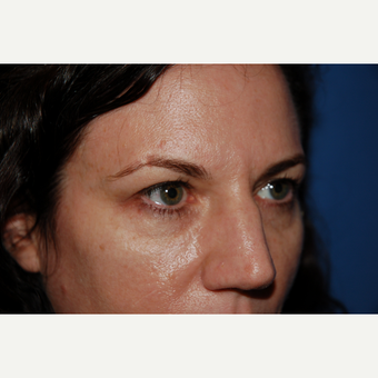 35-44 year old woman treated with Eyelid surgery before 3782052