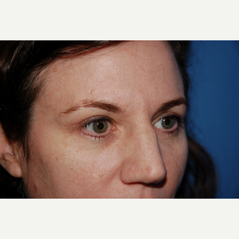 35-44 year old woman treated with Eyelid surgery after 3782052